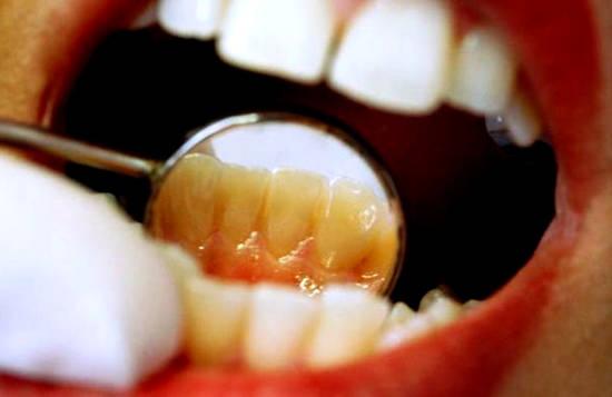 karies-mezhdu-zubami