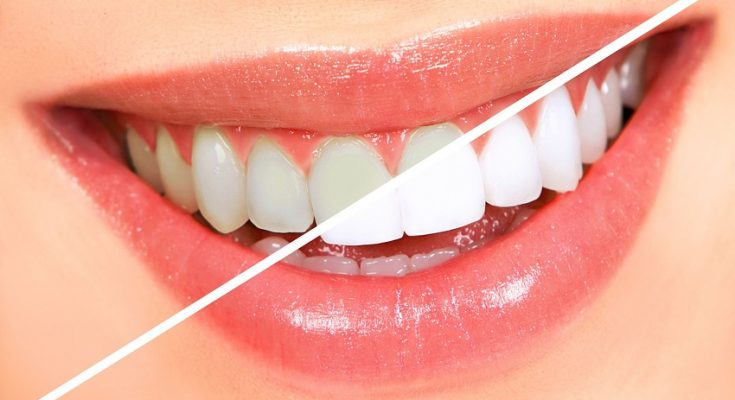 Відбілювання зубів є процедурою a58cdb4973d5c
